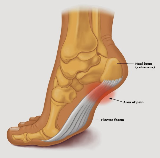 A Real World Research Based Approach To Healing Plantar Fasciosis Plantar Fasciitis For Runners Walkers Golden