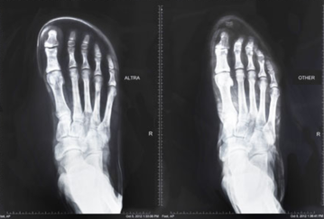Altra X-Ray Image