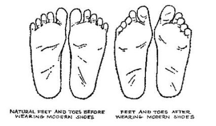 Natural Feet vs Shoe shaped Feet